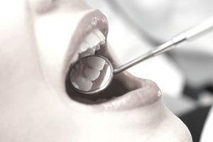 dental loans australia